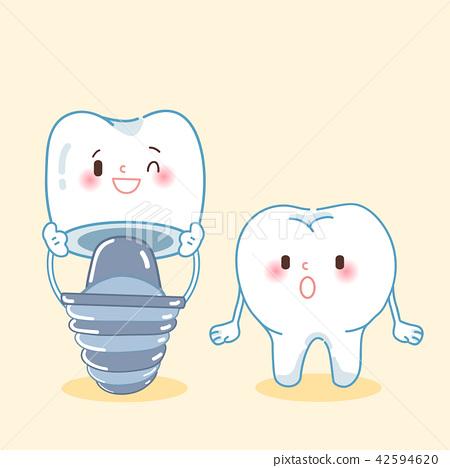 cute cartoon implant tooth 42594620