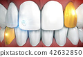 Anterior teeth with gemstone implant and gold 42632850