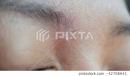 Skin acne, blemish on the face and wide pores. 42708641