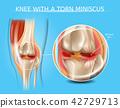 knee, joint, bone 42729713