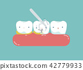 Equipment of dental is cleaning tooth for good hea 42779933
