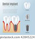 Realistic Dental Implant Infographics 42845224