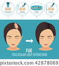 FUE treatment for women 42878069