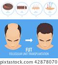 FUT hair loss treatment 42878070
