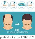 FUE hair loss treatment 42878071