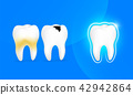 Healthy tooth, decay tooth and tooth with plaque.  42942864