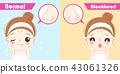 痘痘 照顾 女性 43061326