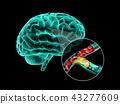 Human brain with cerebral sclerosis. Human brain anatomy 3d illustration. 43277609