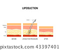 liposuction procedure. Before and after 43397401