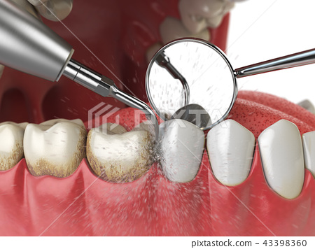 Professional teeth cleaning.  43398360