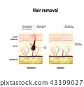 epilation and depilation difference 43399027