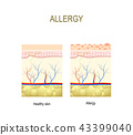 Allergy. healthy and skin with allergic reaction. 43399040