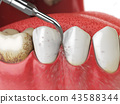 Professional teeth cleaning.  43588344