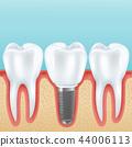 dental implant realistic illustration 44006113