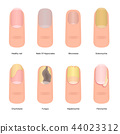 Cartoon Color Nail Diseases Icon Set. Vector 44023312