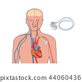Heart pacemaker in work. Artificial cardiac, ICD 44060436