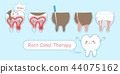 tooth with root canal therapy 44075162