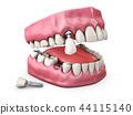Human teeth and Dental implant. 3d illustration. 44115140