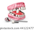 Human teeth and Dental implant. 3d illustration 44122477