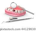 Human teeth and Dental implant. 3d illustration 44129630