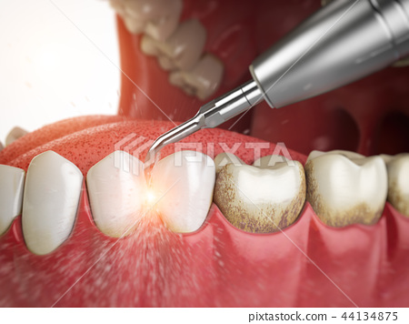 Professional teeth cleaning. 44134875
