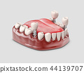Human teeth and Dental implant. 3d illustration 44139707