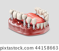 3d Illustration of a Fixed partial denture bridge, isolated white 44158663