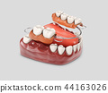 Human teeth with denture. 3d illustration isolated white 44163026