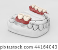 Human teeth with denture. 3d illustration isolated white 44164043