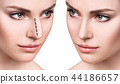 Female face before and after cosmetic nose surgery. 44186657
