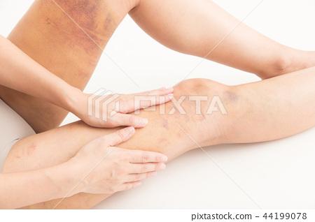 지방 흡입 흉터 여성 (흰색 배경) 44199078