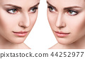 nose, surgery, face 44252977