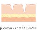 人體皮膚 皮膚 皺褶 44296240