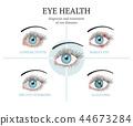 eye illustration common 44673284