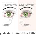 eye illustration ophthalmology 44673307
