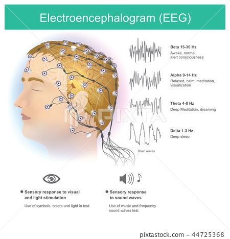 Electroencephalogram (EEG). 44725368