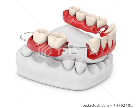 Human teeth with denture. 3d illustration 44792406