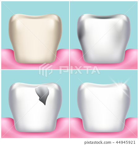Dental problems, caries, plaque and gum disease, healthy tooth vector illustration 44945921