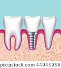human, tooth, dental 44945956