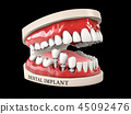 3d illustration of Human teeth and Dental implant isolated black 45092476