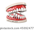 Human teeth and Dental implant. Stock 3d illustration. 45092477