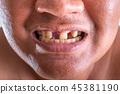 牙齿 脸部 脸 45381190