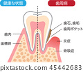 Periodontal disease and healthy teeth Cross section 45442683