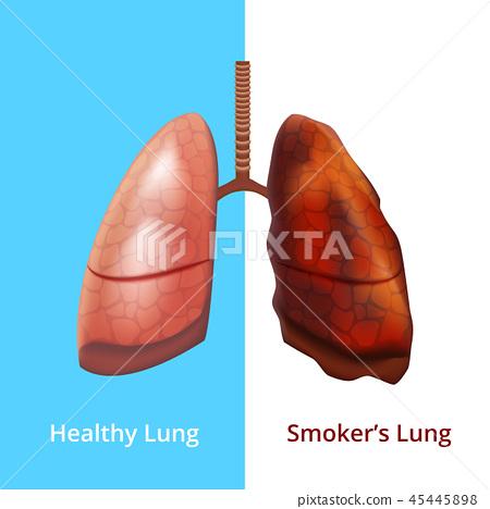 Realistic Detailed 3d Human Lungs Internal Organ. Vector 45445898