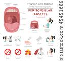 tonsillitis, throat, infographic 45451689