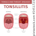Tonsils and throat diseases. Tonsillitis  45451723