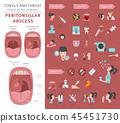 tonsillitis, throat, infographic 45451730