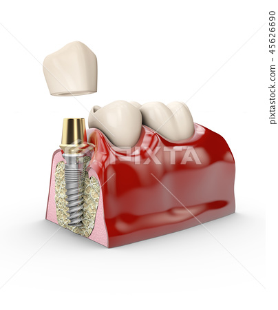 jaw model tooth implant 45626690