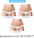 Cesarean Section Stitches Composition 45710457