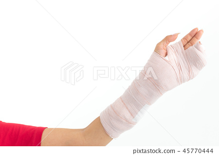 Broken arm isolated in white. 45770444